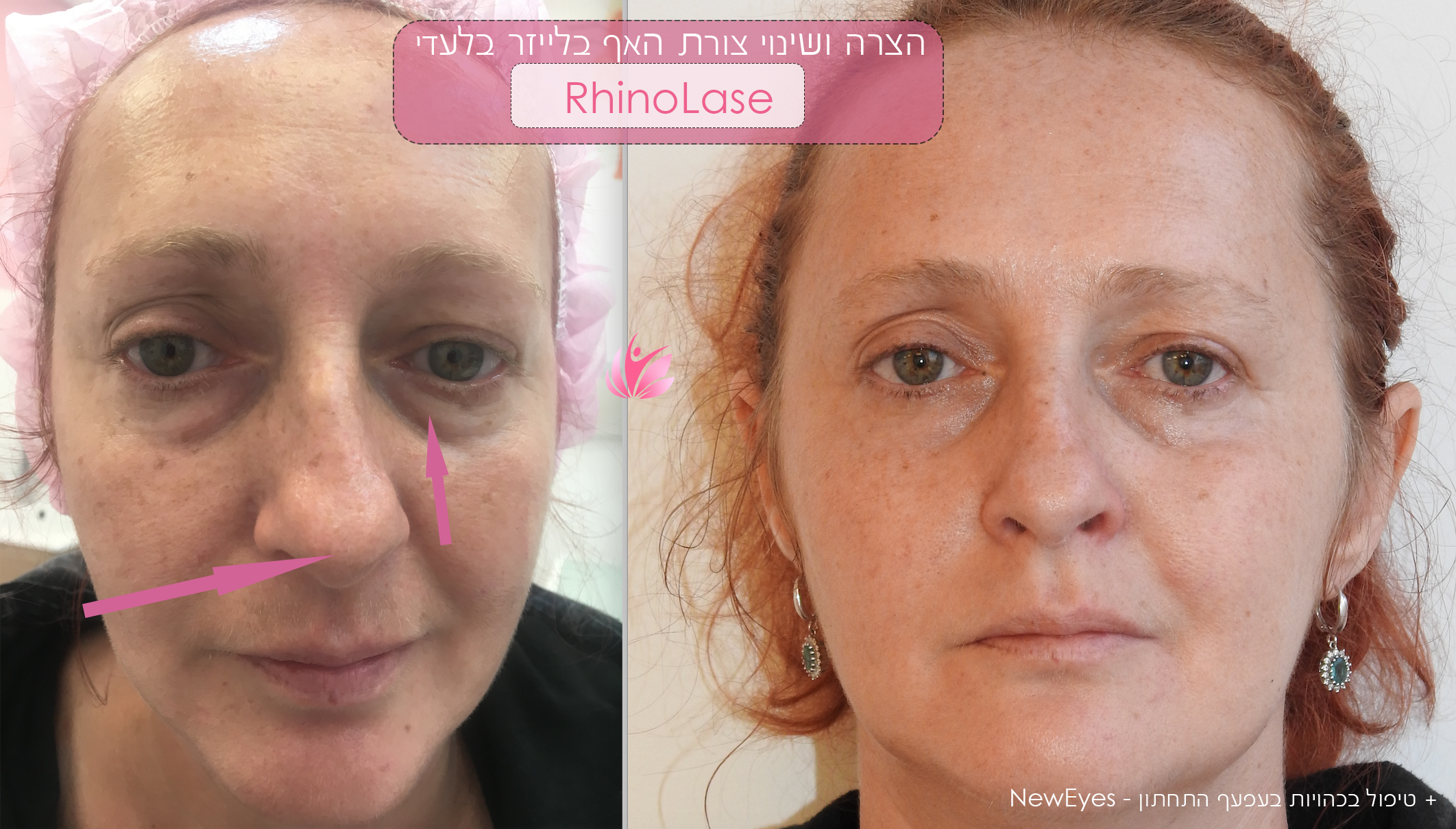 Nose change without surgery